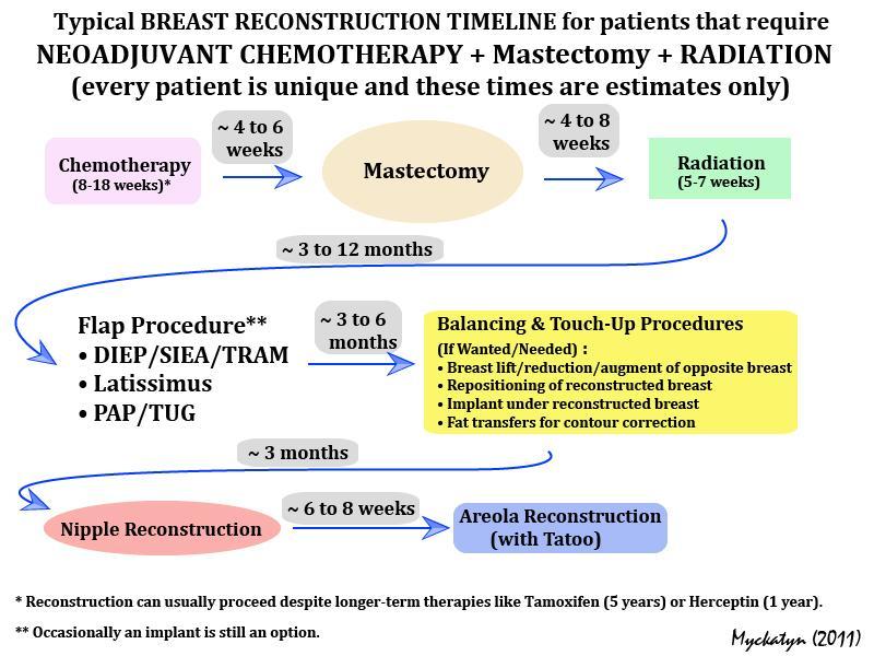 Diep delayed breast surgery